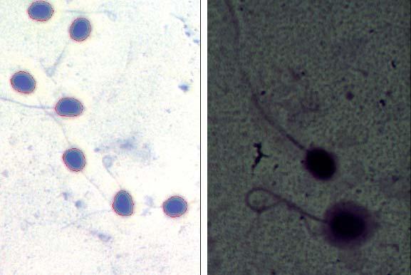 Examen de spermatozoïdes de lama au moyen du système ISAS