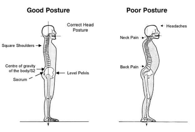 25 Exercises to Fix Bad Posture In A Few Minutes A Day - Brace Access