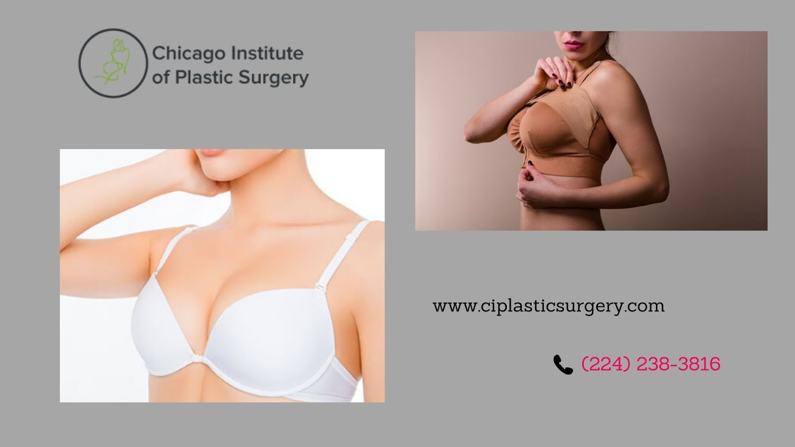 Is Breast Augmentation Considered As A Solution To Improve The