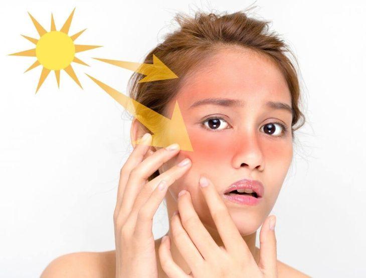 Mề đay cholinergic thường khởi phát do sự tác động của nhiệt độ và ánh nắng