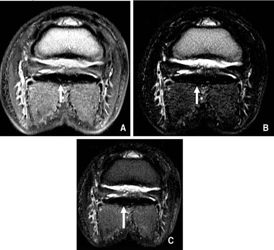 T1-weighted (A), T2-weighted (B), and STIR (C) images immediately proximal to the navicular bone acquired using an ONI OrthOne (1.0 T).
