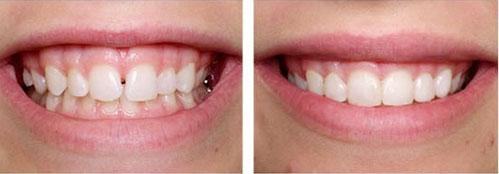 Bọc răng sứ cho răng thưa hiệu quả không? Giá bao nhiêu? 1