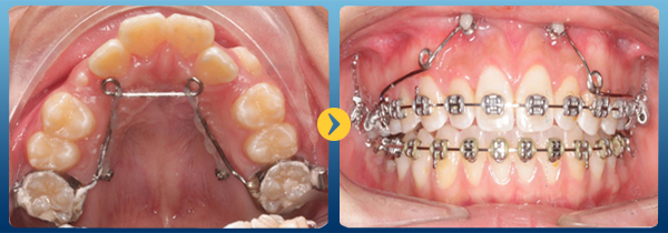 Các phương pháp niềng răng hiệu quả nhất hiện nay 1
