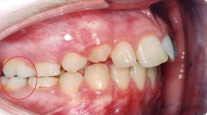 ocluzie dentara clasa 2 tip 1