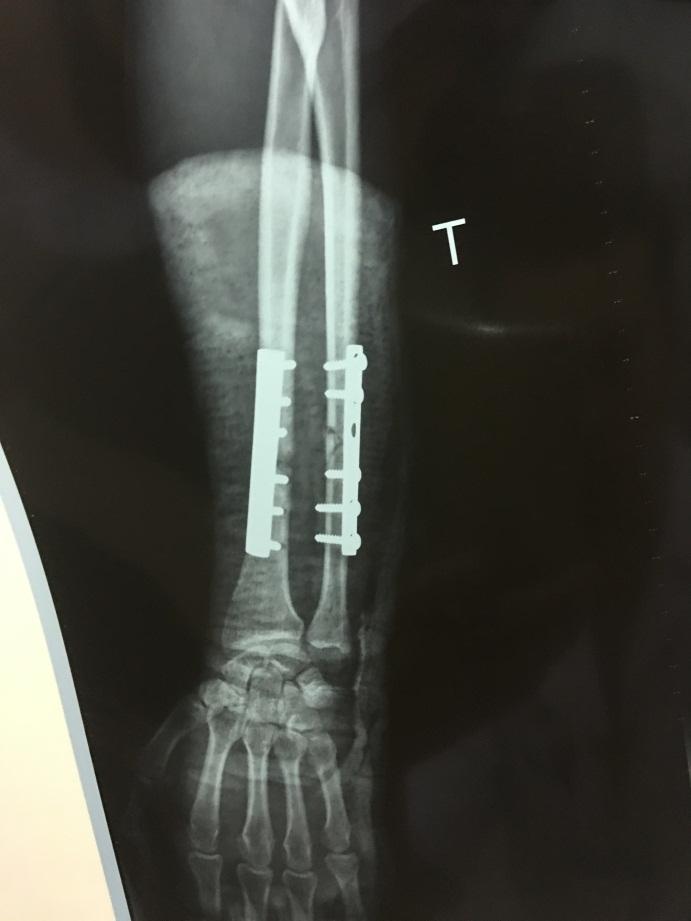 Phẫu thuật kịp thời gẫy hở 2 xương cẳng tay trái cho bệnh nhân tại Trung tâm Y tế thành phố Móng Cái