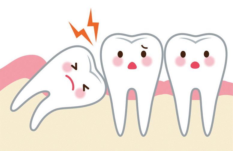 Tác hại không ngờ khi nhổ răng số 8 không đúng kỹ thuật - Nha khoa Bally