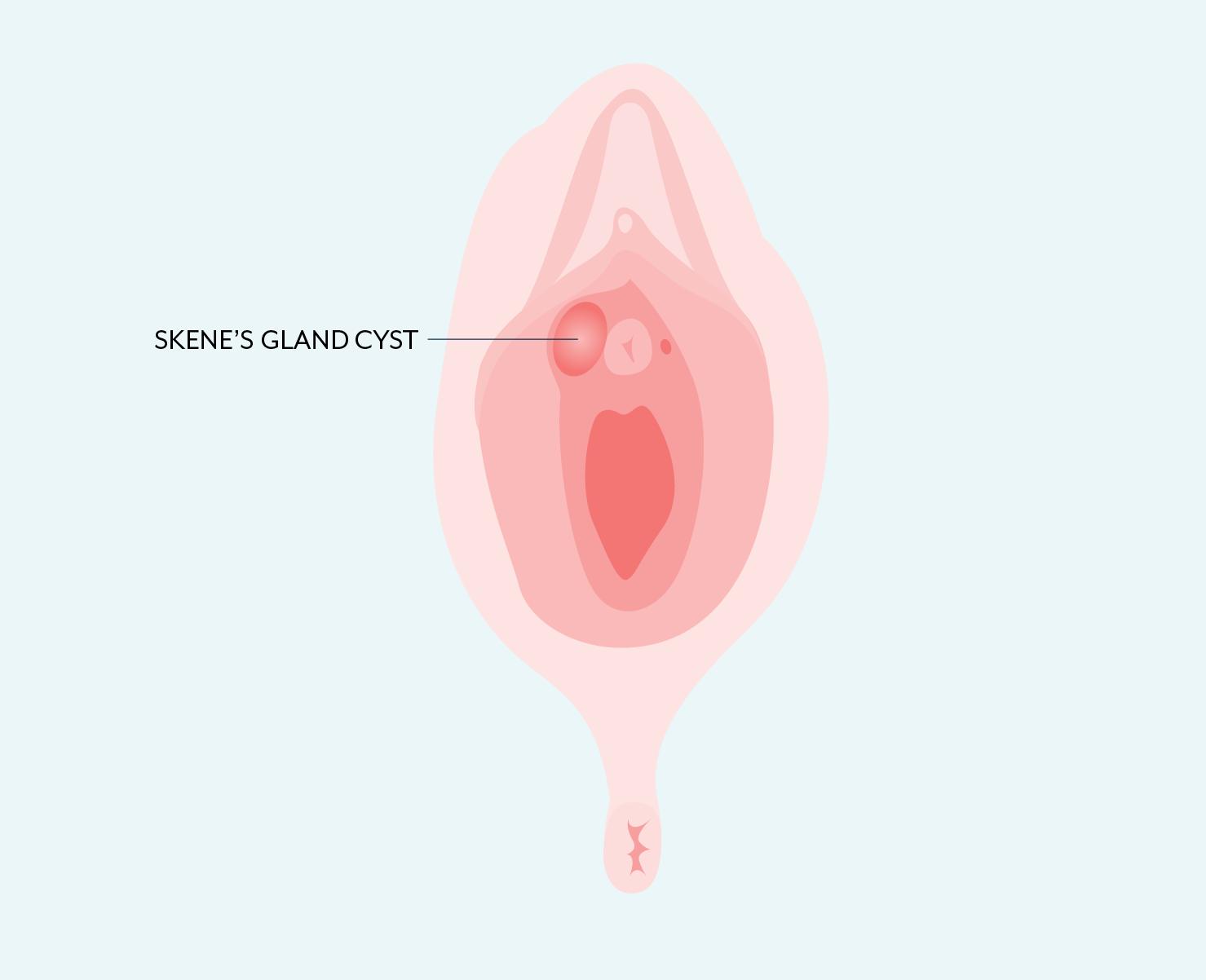 Skene's gland cyst