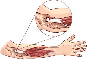 epicondilitis causas y tratamiento