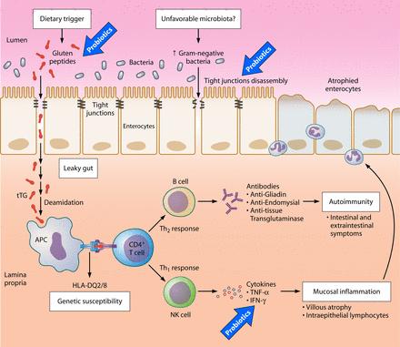 doença celíaca e probióticos
