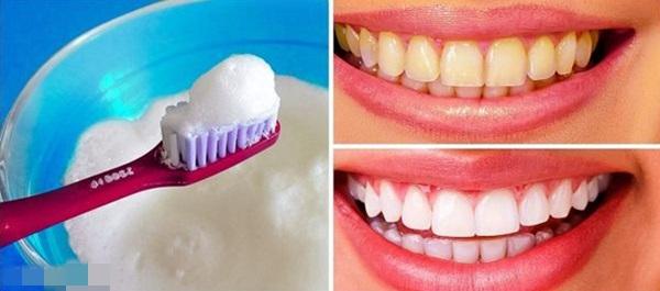 Tẩy trắng răng có ê buốt không do yếu tố nào quyết định? 1