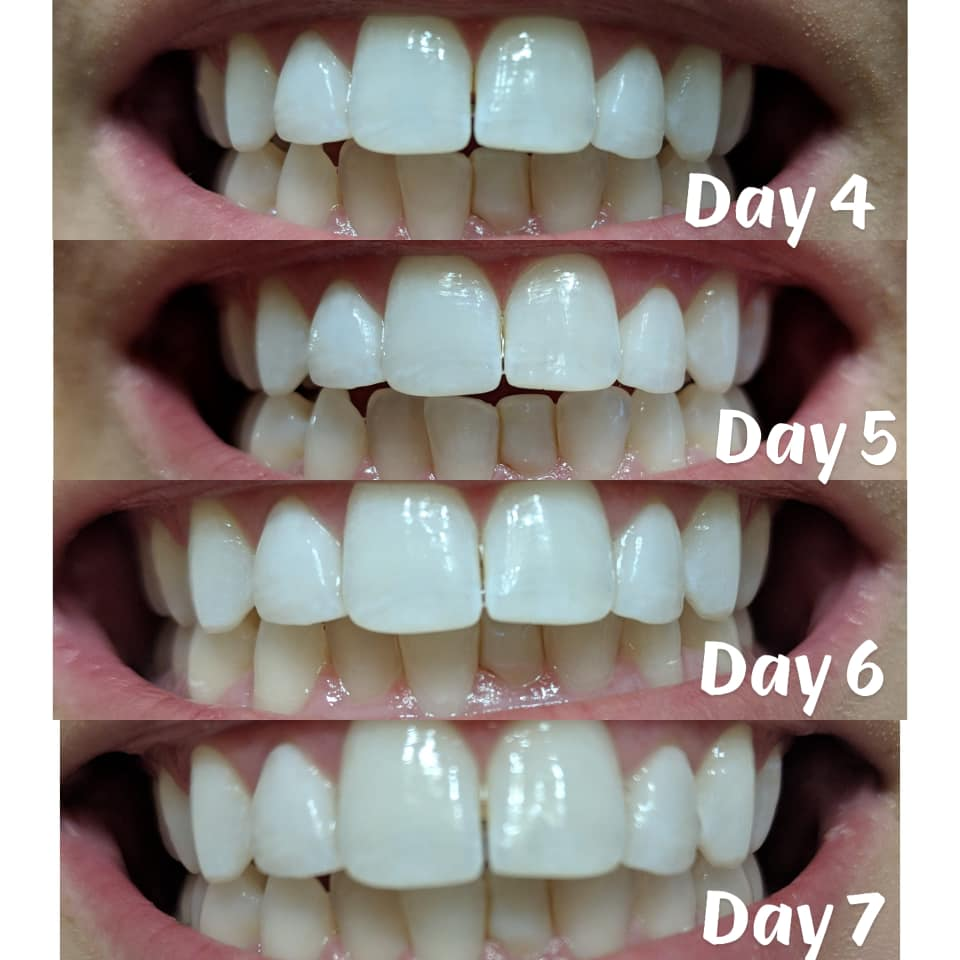 burst whitening strips before and after