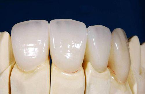 Bọc răng sứ giá bao nhiêu? - ĐÂY Bảng giá bọc răng Rẻ Nhất 2018