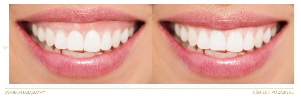 "alt=""stomatologii i estetyki twarzy"""