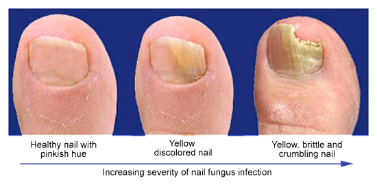Image result for fungal nails pictures