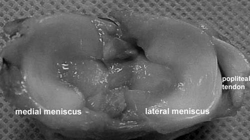 Photograph of the medial and lateral meniscal ligament