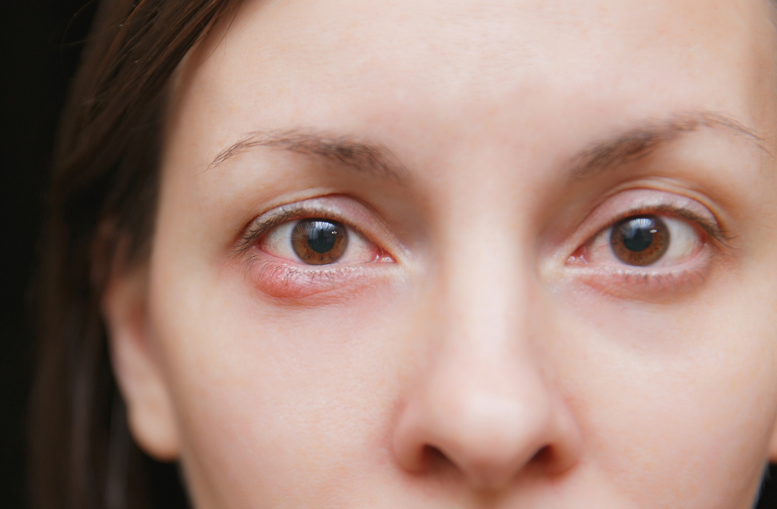 Woman with a stye in her eye as a result of blocked meibomian glands that can be improved with IPL.