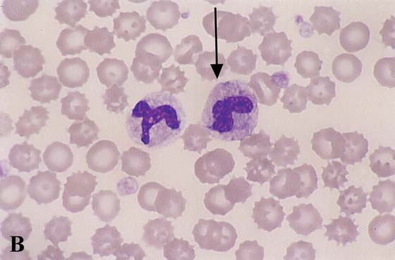 Toxic neutrophils. With severe inflammation or toxemia, neutrophils develop morphologic changes that include cytoplasmic basophilia,...
