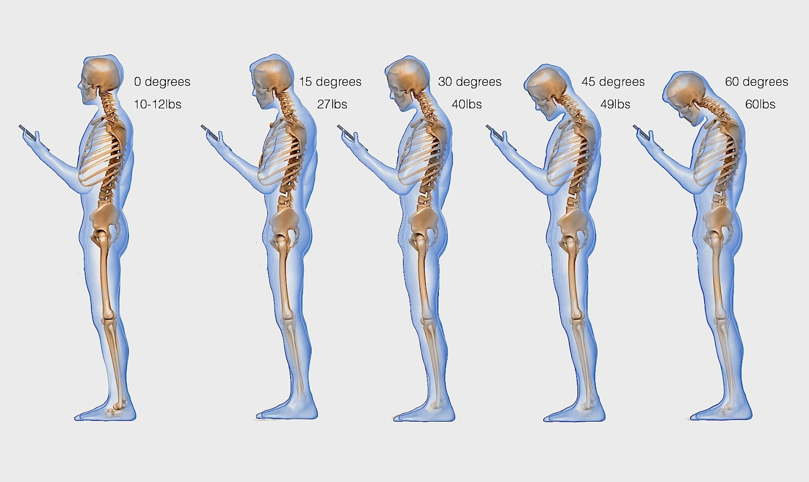 spine-phone-looking-down-neck-texting1.jpg