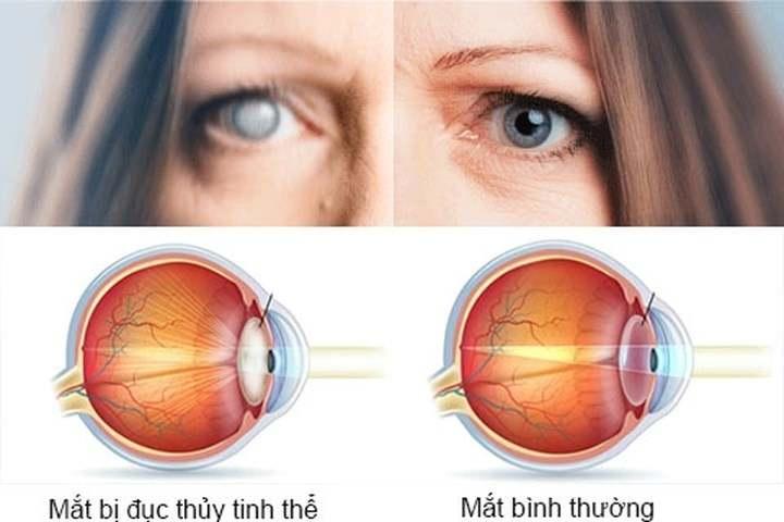 So sánh mắt bị đục thủy tinh thể và mắt bình thường