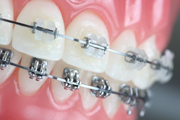 Tại sao phải niềng răng? - Ích lợi quan trọng của niềng răng