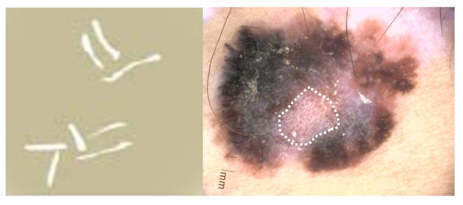 Blanco en dermatoscopia: crisálidas