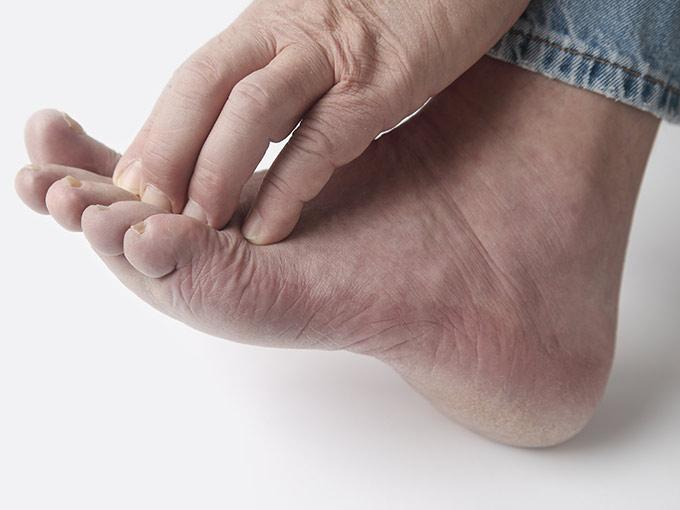 Juckreiz beginnt bei Diabetes meist an den Extremitäten - Betroffene kratzen sich häufig an Händen oder Füßen.