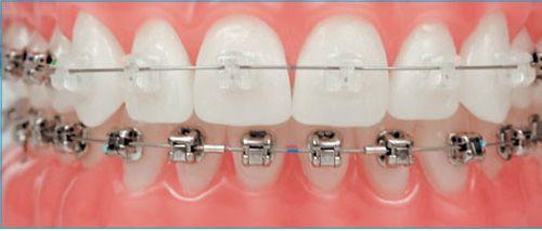 Niềng răng mắc cài tự buộc có điểm gì nổi bật, hiệu quả thế nào?