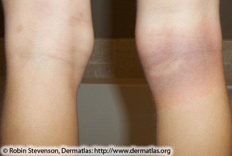 Красно-синий с поражением центральной поляне на задней части коленного сустава
