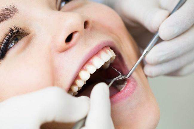 Hasil gambar untuk gigi berubang