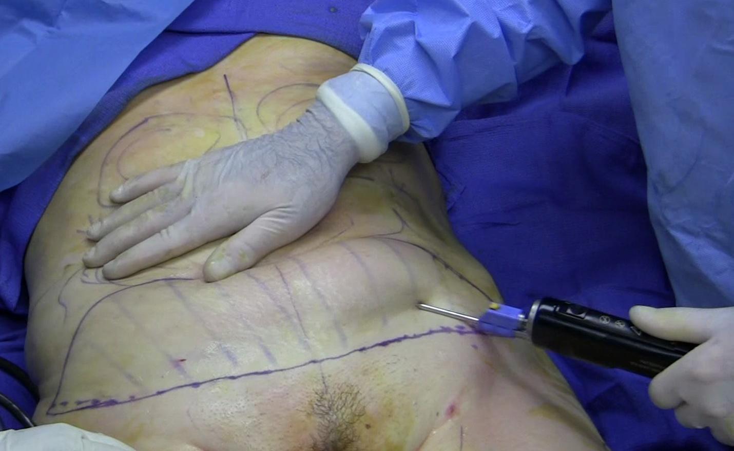 Liposuction - Wikipedia