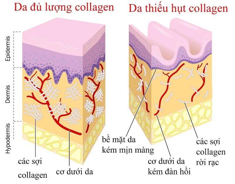 collagen-kho-la-gi