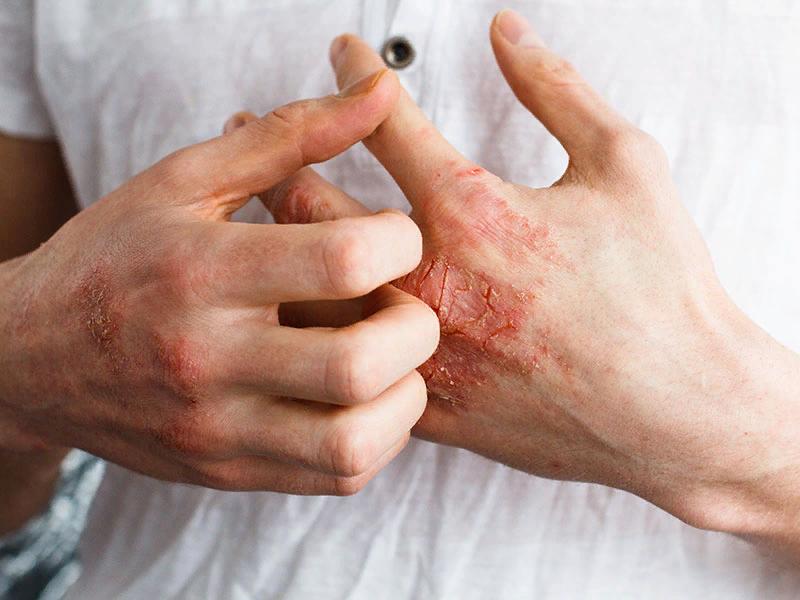 Экзема кожи: фотографии, симптомы, стадии экземы