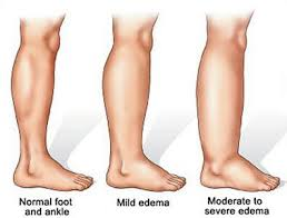 the level of edema (swelling) increase as the pregnancy progresses