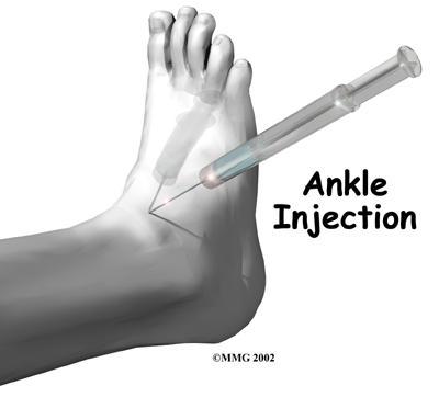 C:\Users\1\Desktop\ankle_osteoarthritis_treatment02.jpg