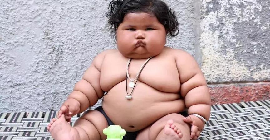 doktersehat-chahatkumar-obesitas