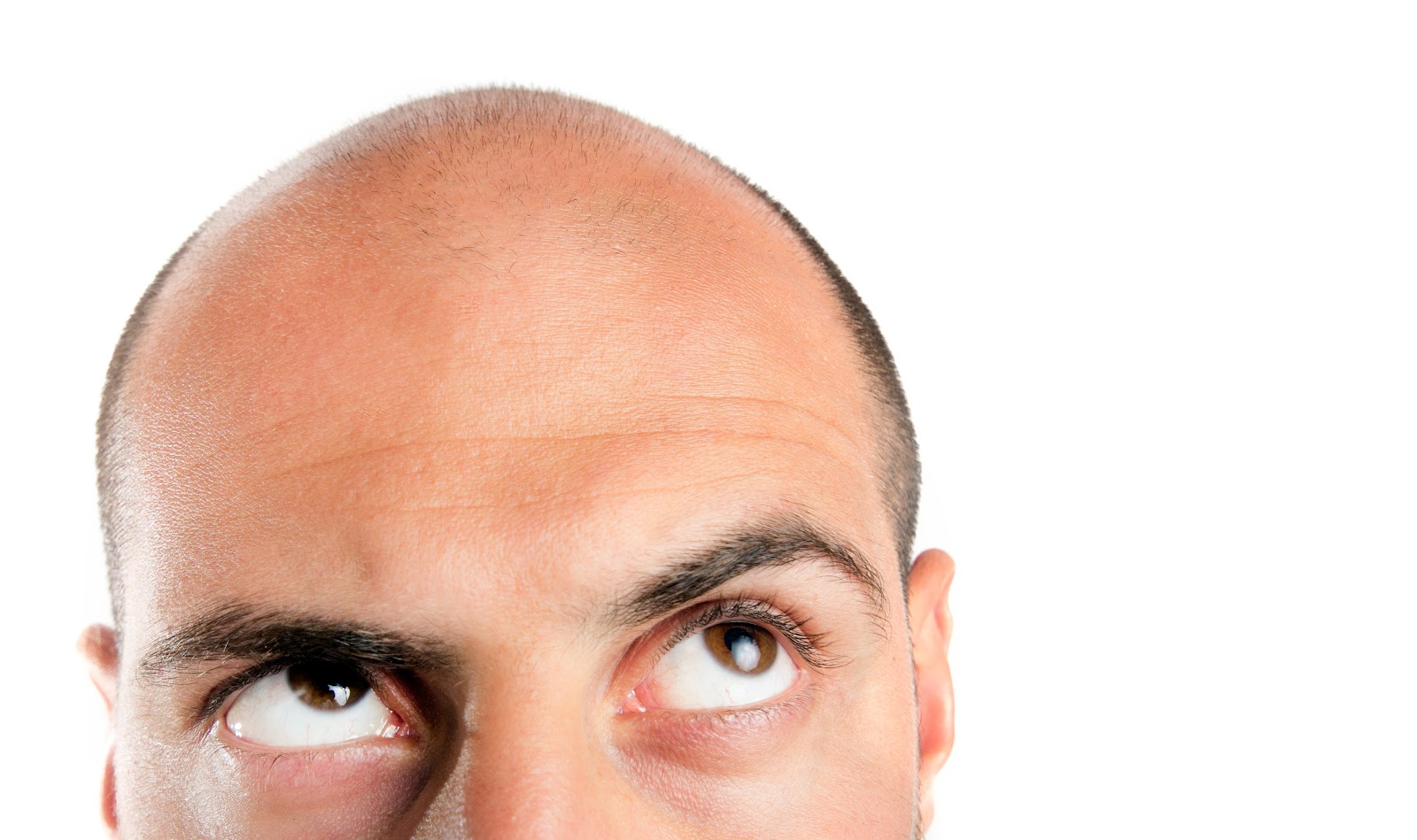 A man looking up at his balding head