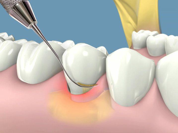 Lấy cao răng có đau không? - Trải nghiệm thực tế khách hàng