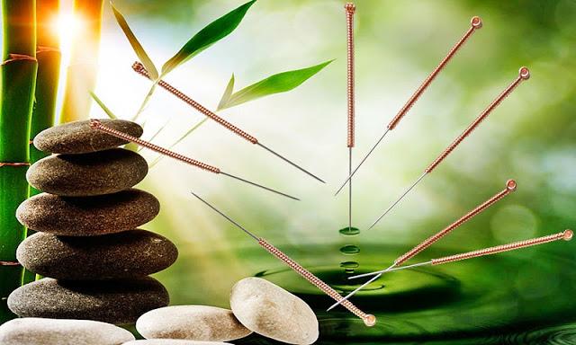 acupuncture2.jpg