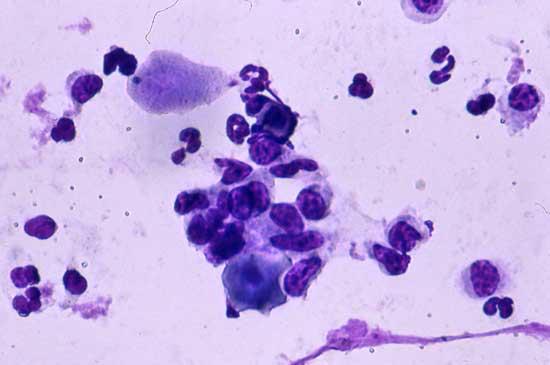 Frotis vaginal obtenido de una perra 4 días después del inicio del metaestro. Esta vista muestra células parabasales y leucocitos
