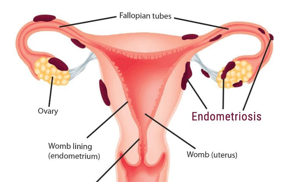 Best Treatment for Endometriosis in Hyderabad, female fertility doctor near Sanath Nagar