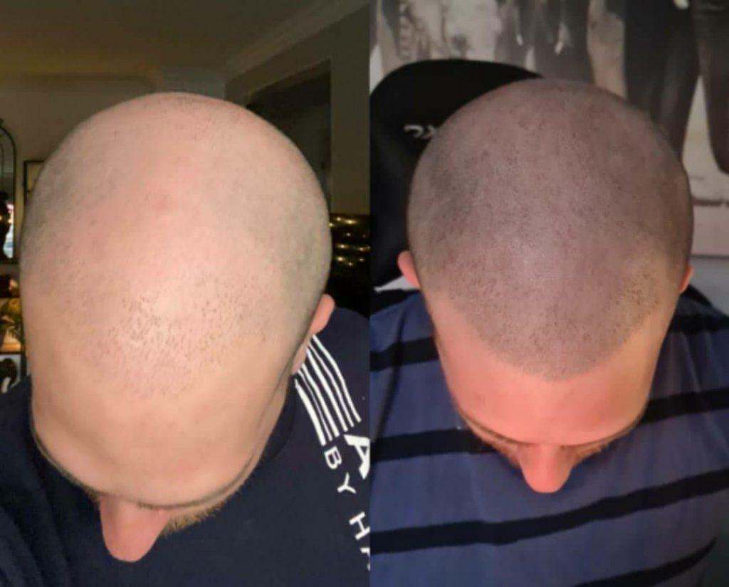 C:\Users\De Vine\Downloads\Before_and_after_scalp_micropigmentation.jpg