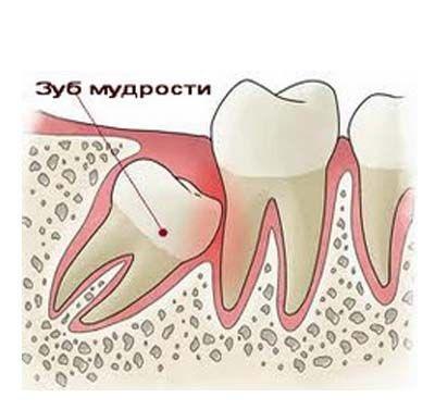 Как может расти зуб мудрости