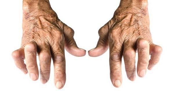 Sai lầm trầm trọng khi điều trị bệnh xương khớp, đâu là giải pháp hiệu quả nhất? - Ảnh 1