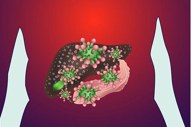 Как предостеречь себя от заражения гепатитом С