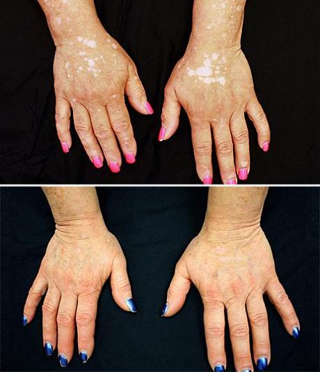 vitiligo_Yale-Uni-Before-and-After.jpg