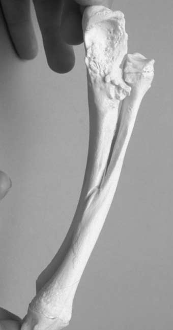 Photo of synostosis due to prior fracture and subsequent union of the radius and ulna to each other