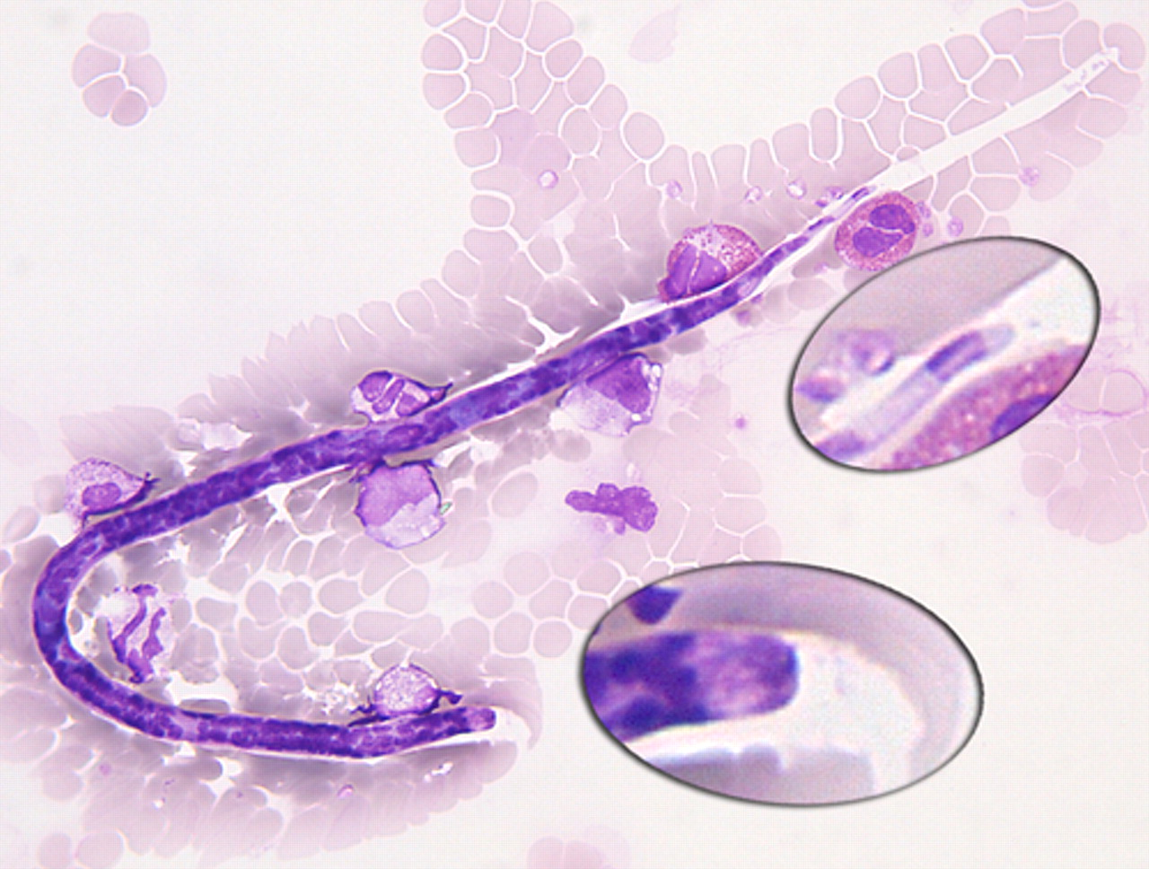 Loa loa microfilariae