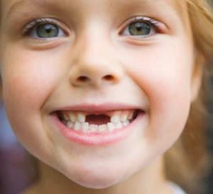 Как-вырывают-молочные-зубы-300x274.jpg