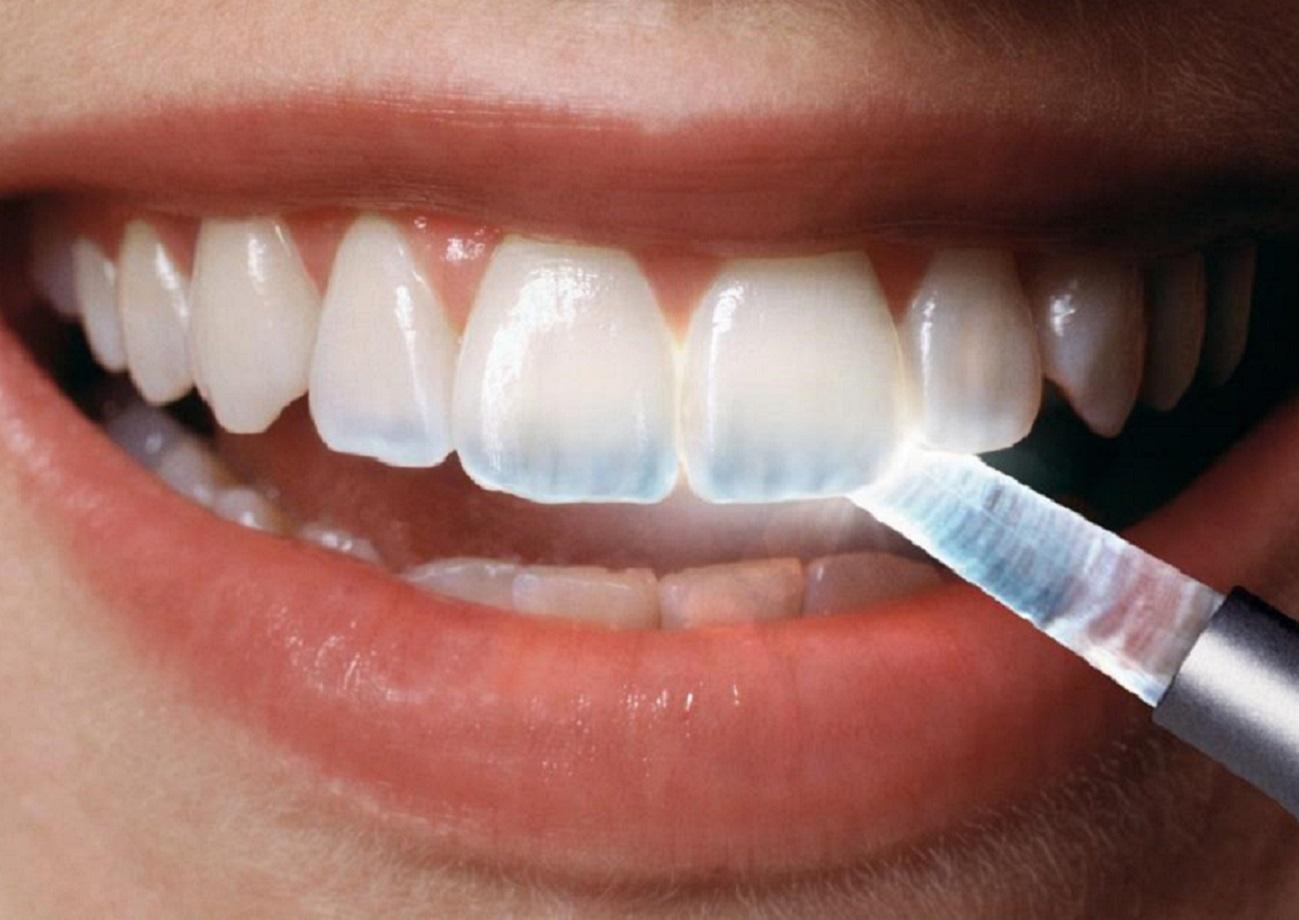 Современные методы лечения зубов в  VIP стоматологии  Киева