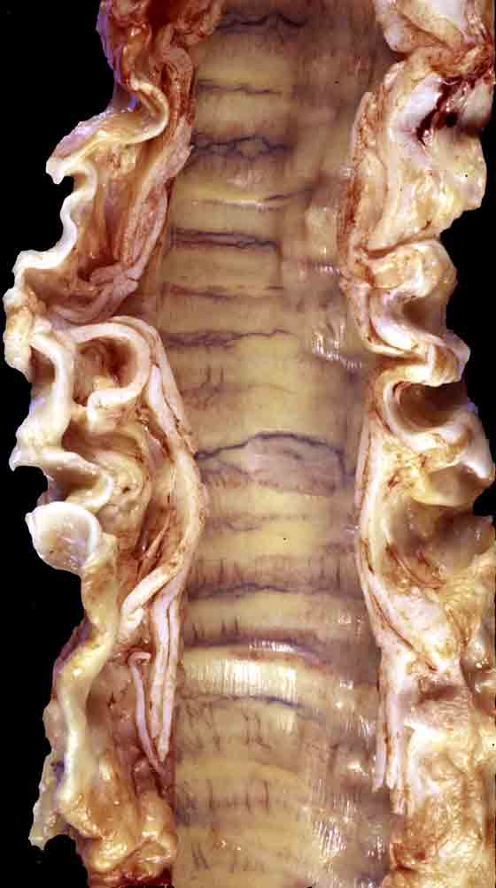Tracheobronchial disease is typically that involving the mucosa and lumen. This is an example of a rare mural disease. In this instance degeneration of tracheal and bronchial cartilages has led to tracheal distortion and narrowing.
